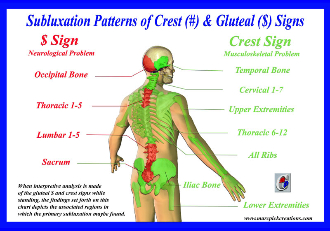 Subluxation Patterns of Crest (#) & Gluteal ($) Signs Wall Chart